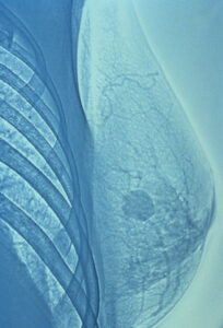 Mammogram of Breast With Tumor --- Image by © Visuals Unlimited/Corbis